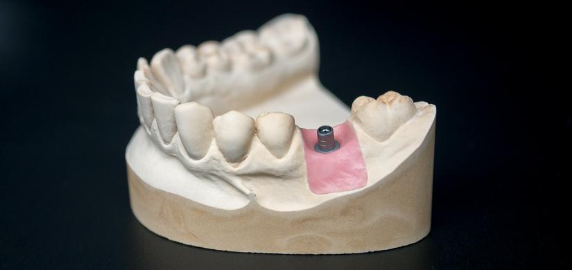 Tytanowa baza łącznika implantologicznego
