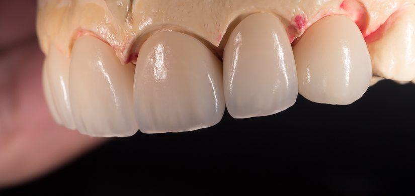 Korony z e.max Press HT (hight traslucent) mogą mieć bardzo wysoką przezierność - w obrębie zębów 12-22 widać prześwitywanie czerwonego lakieru dystansowego którym został pokryty model.